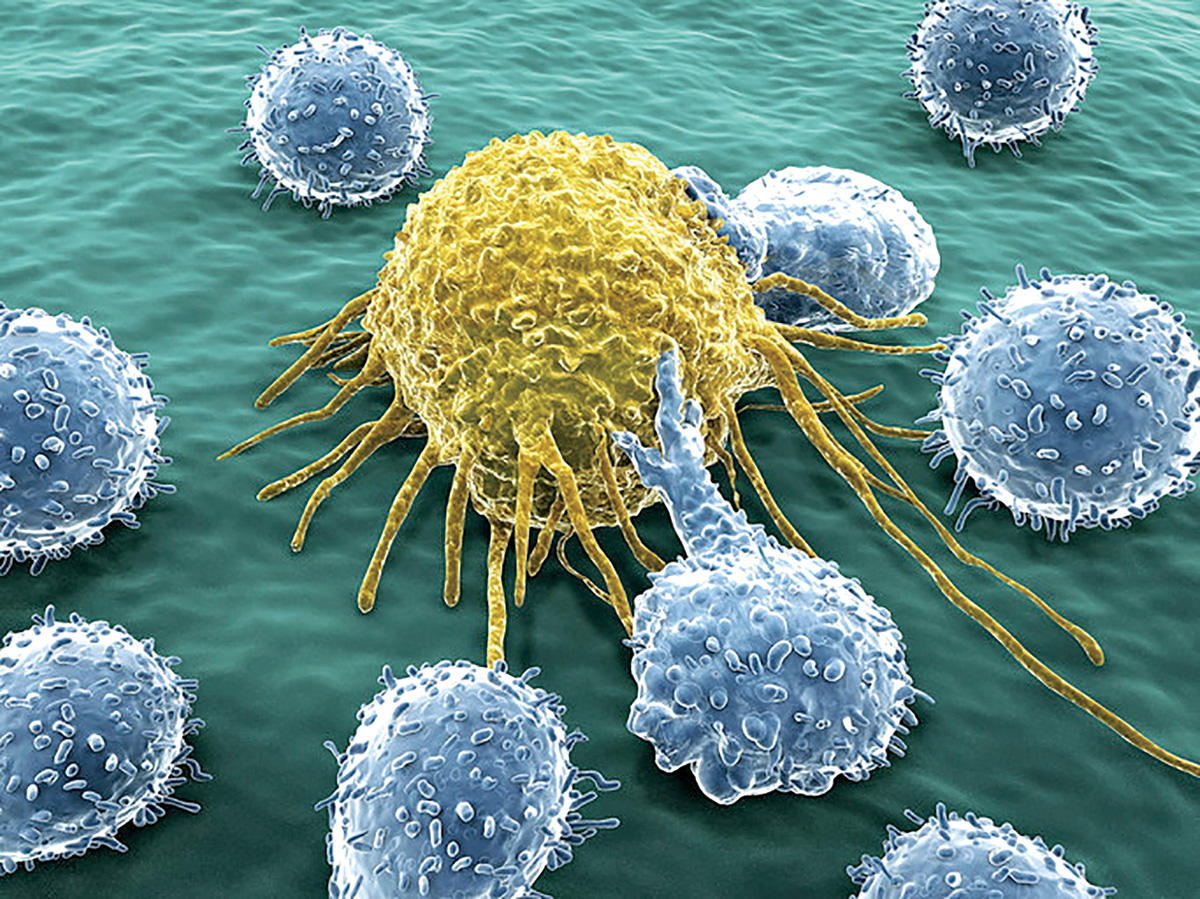 An artist's rendering of white blood cells attacking a cancer cell