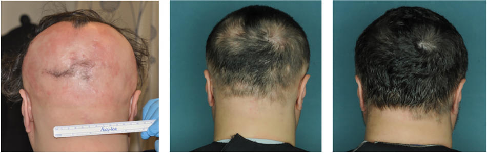 Photos of an alopecia areata patient who was treated with a JAK inhibitor and experienced near-total hair regrowth.