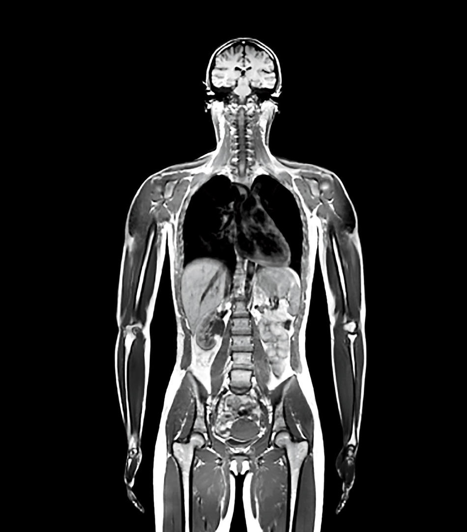MRI scan of human body